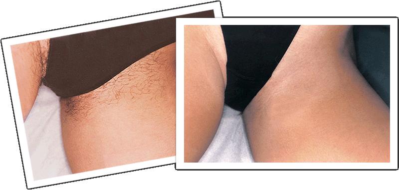 Как осветлить кожу интимных мест Вам