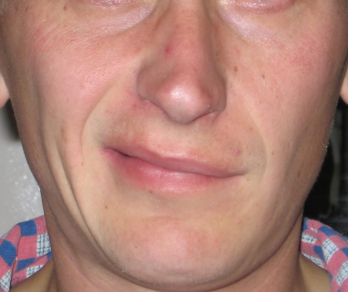 Ком в горле с правой стороны остеохондроз