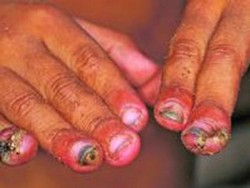 болезнь тунгиоз