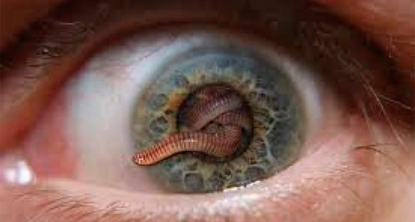 как появляются паразиты в организме человека