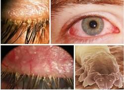 Симптомы офтальмомиаза