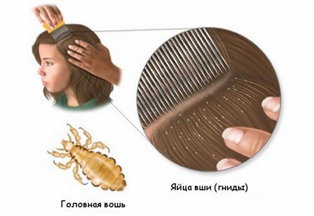 вши и гниды вшей в волосах