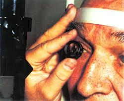 Внутренний офтальмомиаз