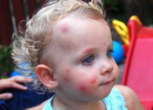 укусы у ребенка