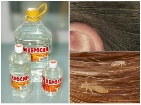Как использовать керосин от вшей и гнид у детей, пропорции и сколько держать